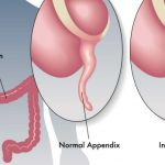 Cos'è l'appendicite