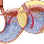 Come evitare il reflusso gastroesofageo